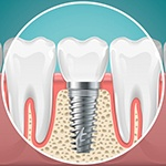 dental implant in the jawbone