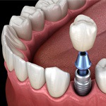 dental implant post being placed in the bottom jaw