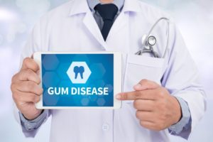 gum disease sign